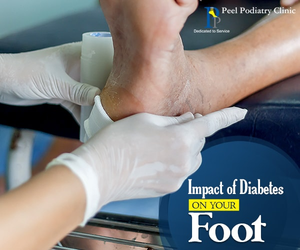 Impact of Diabetes on Foot