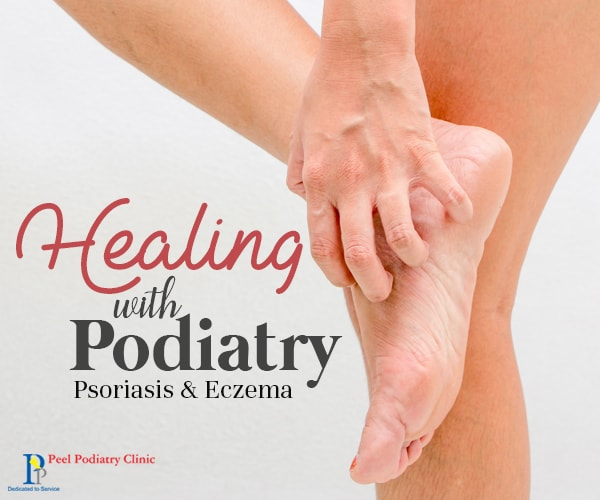 Psoriasis and Eczema