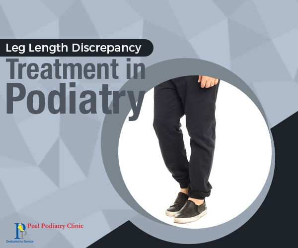 leg length discrepancy treatment mandurah