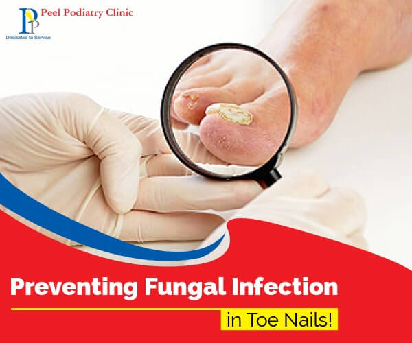 fungal infections treatment in mandurah