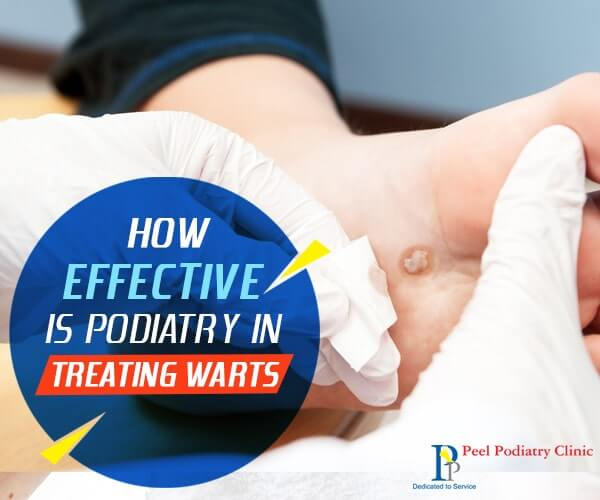 warts treatment mandurah