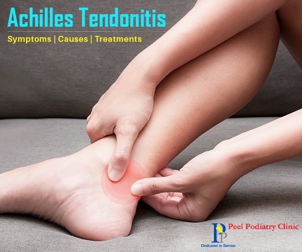 Symptoms, Causes, and Treatments Of Achilles Tendonitis