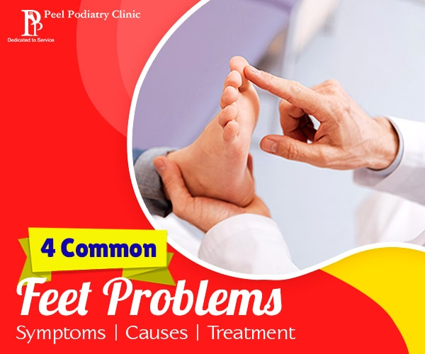 Common Feet Problems