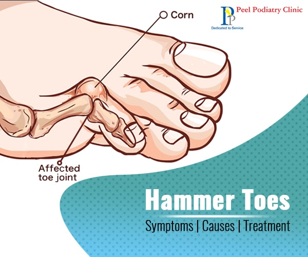 Symptoms, Causes And Treatment Of Hammer Toes