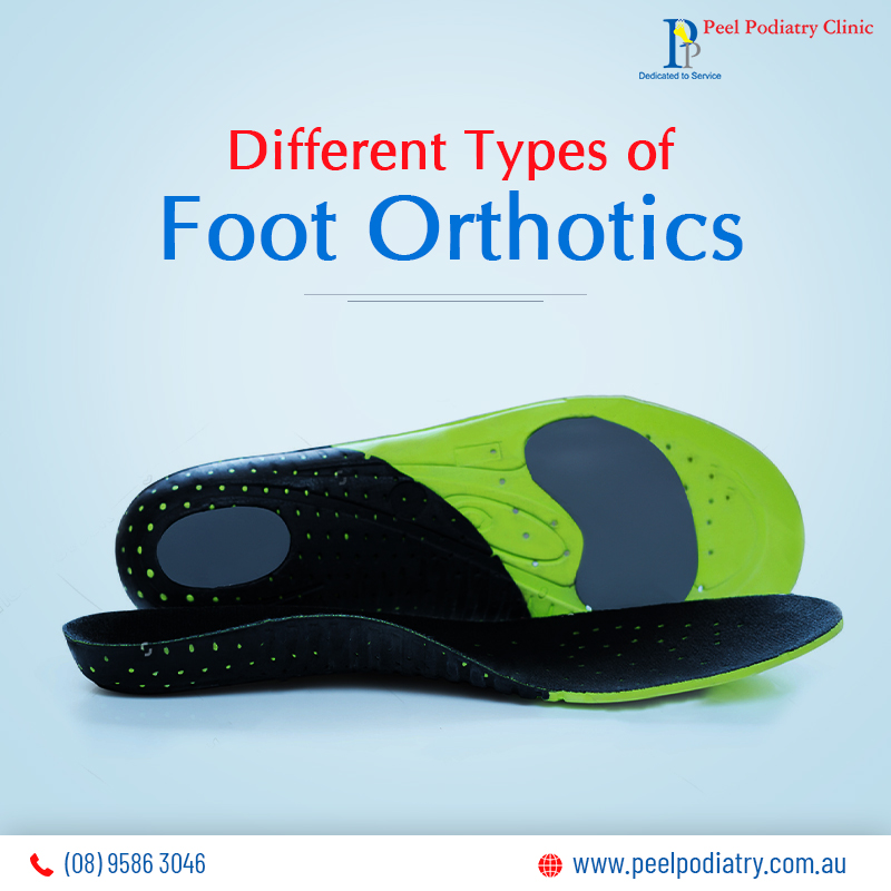 Types of Foot Orthotics
