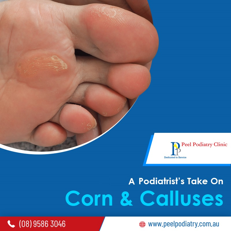 A Podiatrist's take on Corn and Calluses