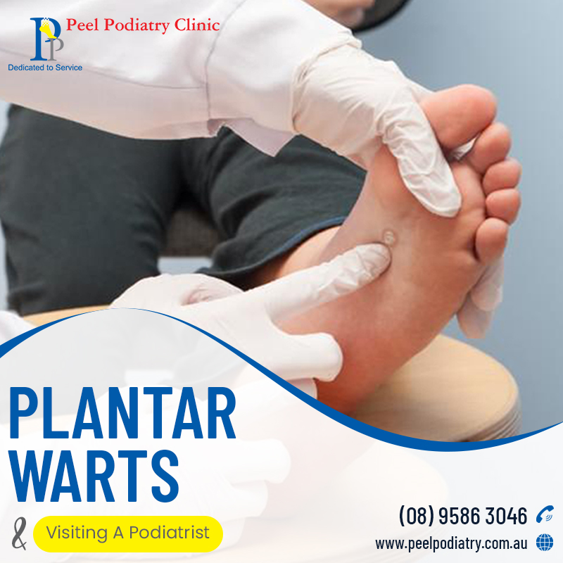 Plantar Wars & Why You Should Visit a Podiatrist in Mandurah
