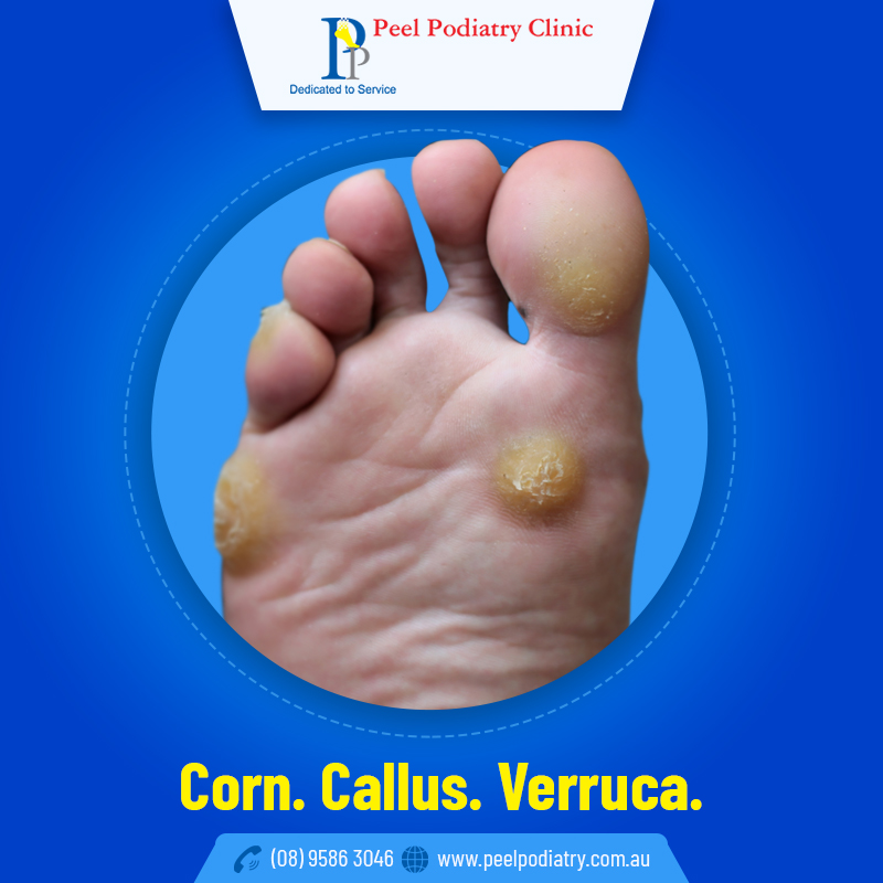 Corn, Callus or Verruca- Which One is Causing Pain on my Foot
