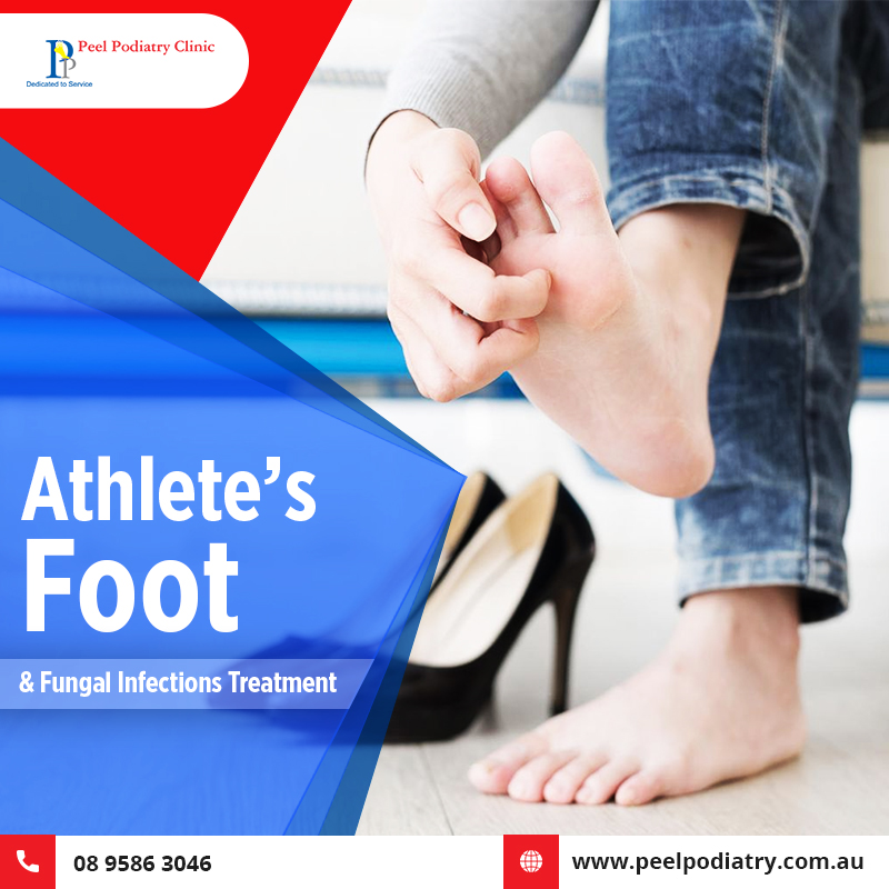 What is Athlete's Foot & Do I Need a Fungal Infections Treatment