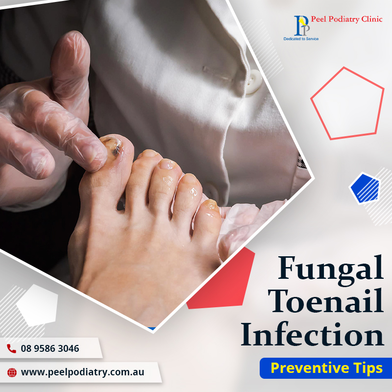 5 Most Effective Tips for Preventing Fungal Toenail Infection