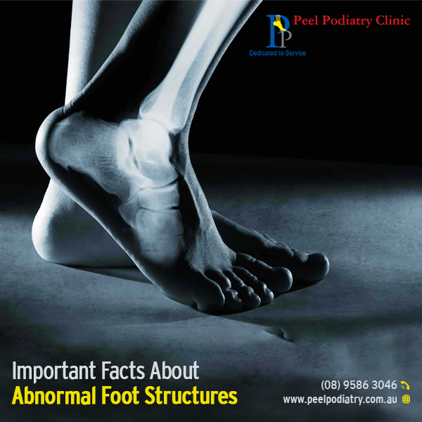 Facts About Abnormal Foot Structures